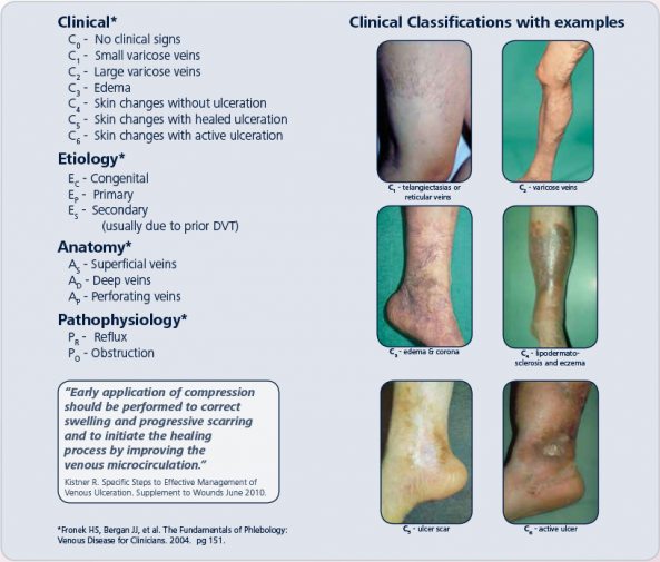 sigvaris ceap classifications